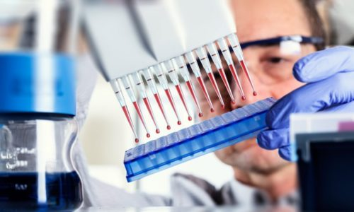 Полимеразная цепная реакция - самый высокоточный метод диагностики таких заболеваний, как воспаление уретры или мочевого пузыря
