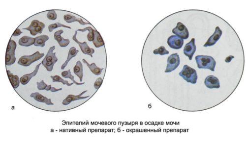 В урине могут встречаться клетки плоского, почечного и переходного эпителия