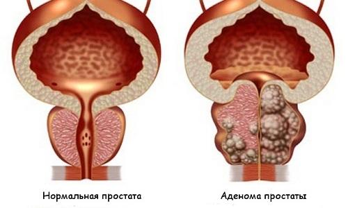 К затрудненным и частым мочеиспусканиям приводит аденома