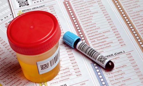 Чтобы поставить диагноз цистит, требуется всестороннее обследование грудничка. Для этого необходимо сдать анализы крови и мочи, а также провести инструментальные методы исследования