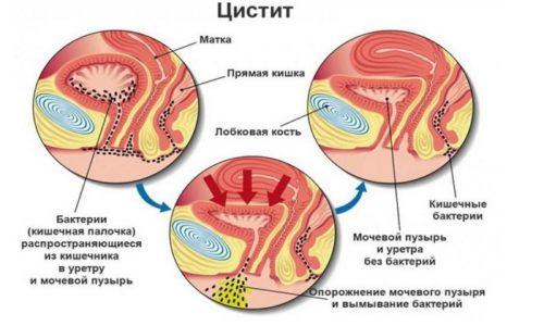 Цистит - это воспаление мочевого пузыря, которое протекает крайне тяжело и проявляется острой симптоматикой