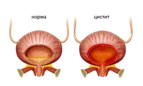 Неприятные ощущения в мочевике появляются из-за развития цистита