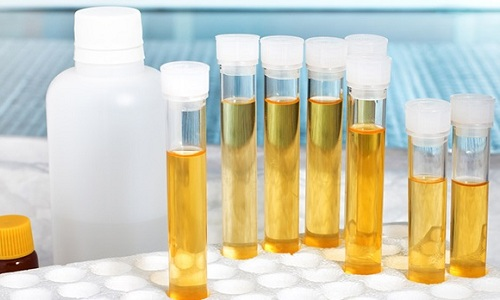 Анализ мочи по Нечипоренко необходим для диагностики хронического воспалительного процесса, при котором клинические проявления заболевания выражены слабо