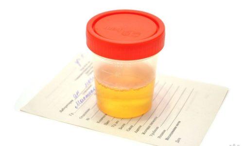 Изменение цвета мочи - признак воспаления мочевого пузыря при беременности