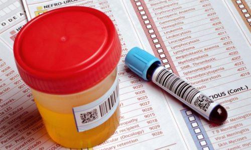 Для подбора эффективной схемы лечения назначают общий анализ мочи и крови