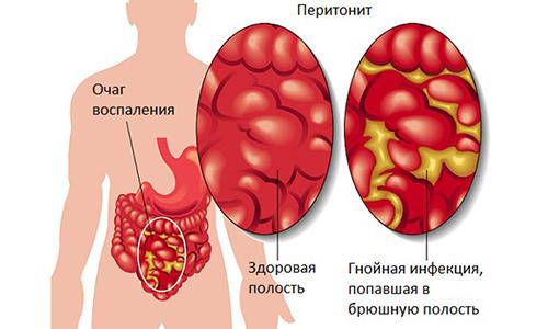 У ребенка причиной изменения цвета мочи становится гнойный процесс в организме