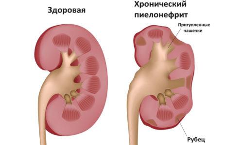 Cимптомы цистита схожи с некоторыми другими патологиями такими как пиелонефритом