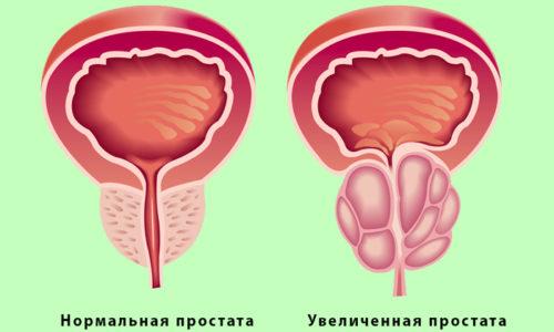 При простатите происходит увеличение предстательной железы и сдавливание мочеиспускательного канала, что нарушает нормальный процесс опорожнения