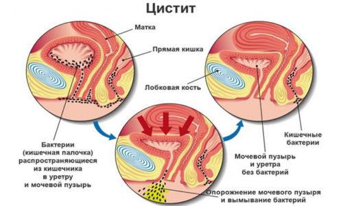 Цистит встречается чаще у женщин, чем у мужчин, в связи с более короткой уретрой, что способствует проникновению болезнетворных бактерий в область мочевого пузыря