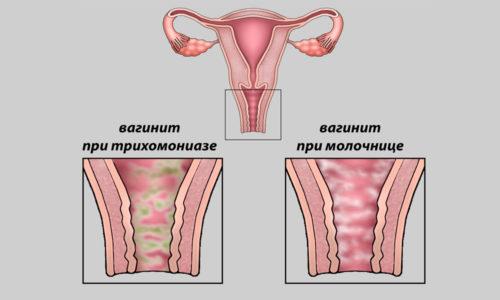 Также причиной ярко-зеленого оттенка может быть вагинит