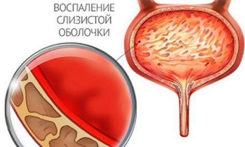 Воспаление мочевого пузыря у детей может возникать по многим причинам