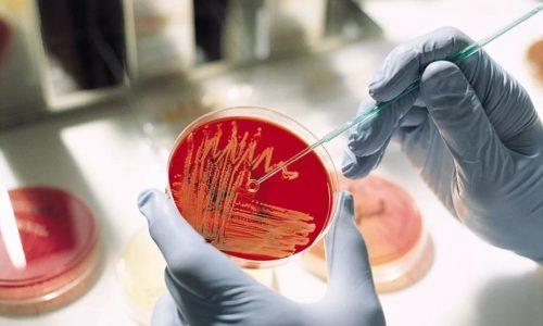 Диагностические мероприятия могут включать в себя проведение общего анализа мочи и бактериального посева