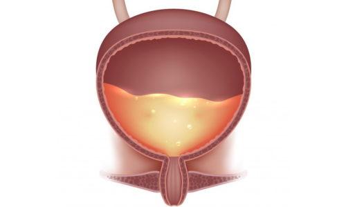 Моча не выводится из организма полностью из-за повреждения регуляторных механизмов, элементов вегетативной нервной системы и проводящих путей
