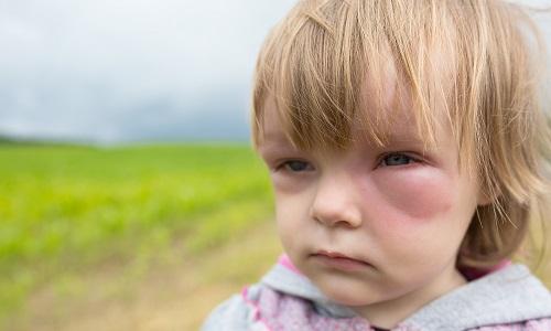 Отек Квинке на лице у ребенка