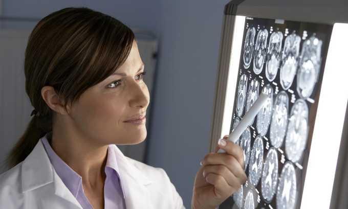 После фиксации жалоб пациента врачом-гинекологом или урологом назначается рентгенография