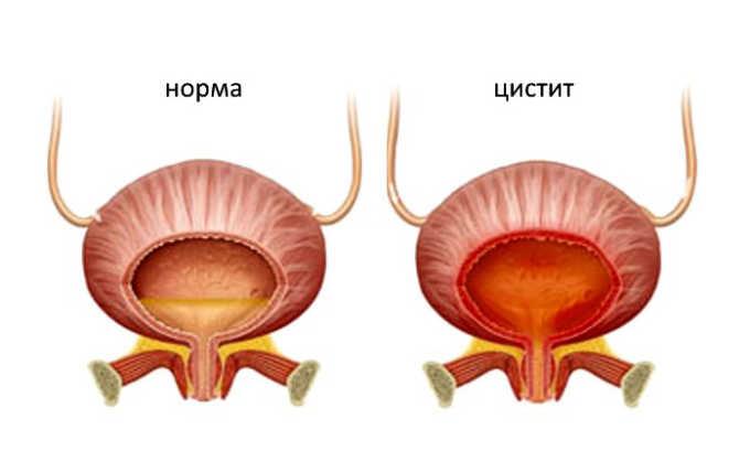 При цистите наблюдаются боли при мочеиспускании
