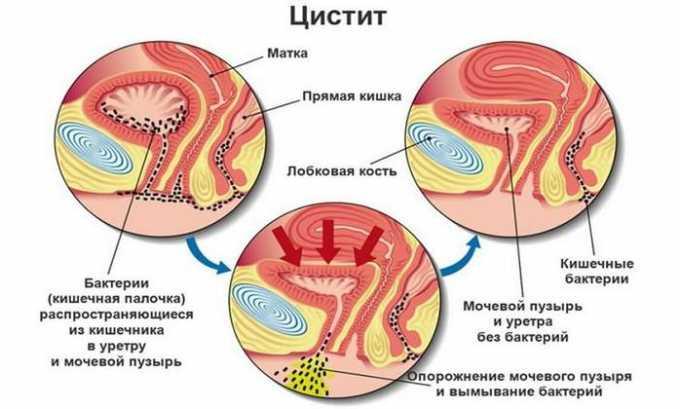 Цистит, вызванный кишечной палочкой, сочетается с поражением кишечника, вызывающим тошноту и рвоту