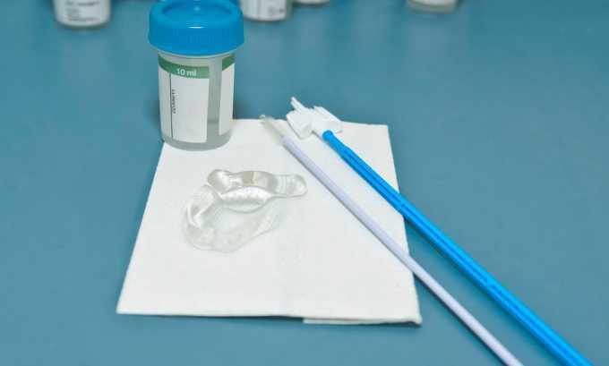 Мазок на наличие урогенитальной инфекции берут для диагностики недержании мочи при цистите
