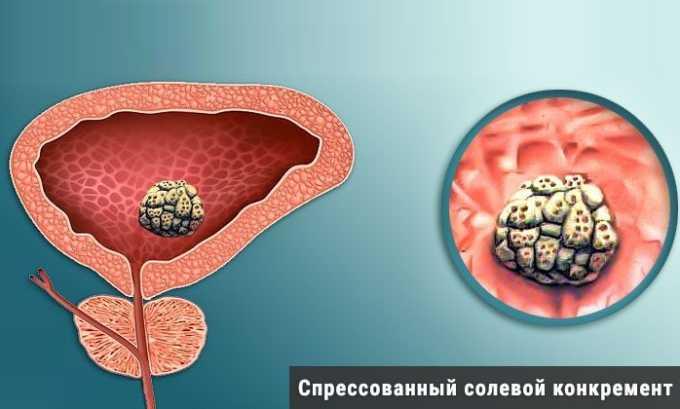 Провоцирующий фактор развития цистита - травматическое повреждение слизистой оболочки мочевого пузыря в результате образования конкрементов