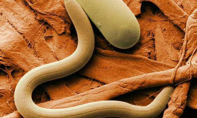 Выделяемые паразитами токсины негативно влияют на весь организм, делая его неспособным сопротивляться инфекциями