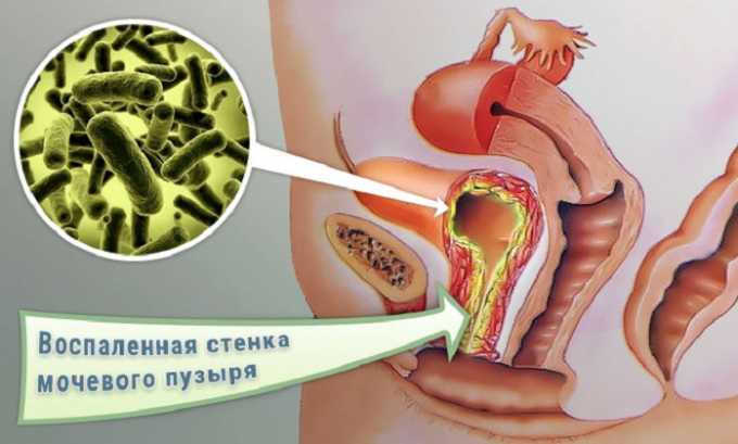 Пищевая сода также вымывает бактерии из мочевого пузыря