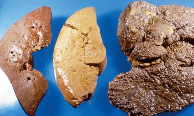 Нельзя использовать имбирь при циррозе печени