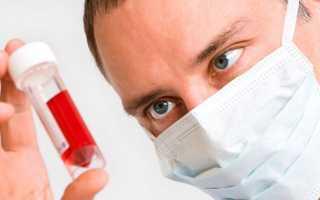 Причины крови в моче при цистите