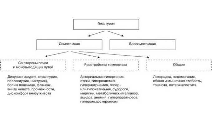 Симптомы гематурии