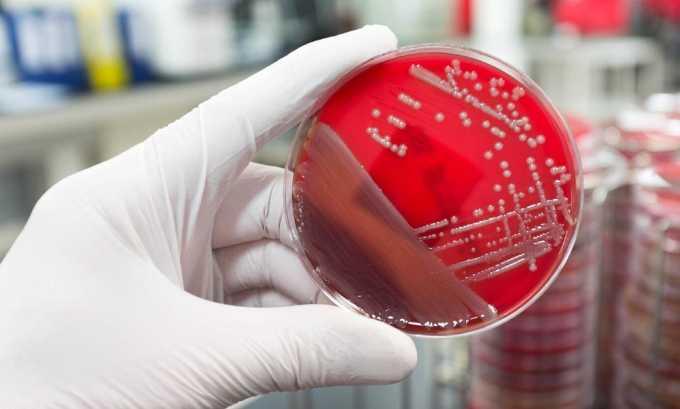 Лабораторное обследование включает бактериальный посев мочи