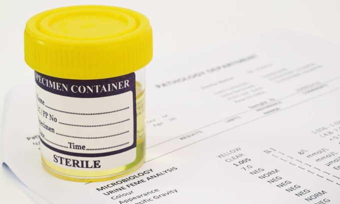 Общий анализ мочи используется для исключения инфекционной природы цистита