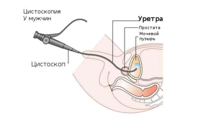 Цистоскопия - эндоскопическое исследование которое помогает установить характер цистита, диагностировать мочекаменную болезнь, выполнить биопсию