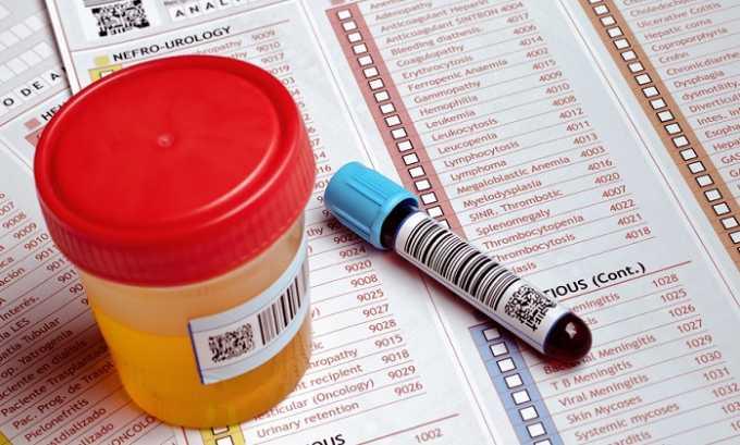 Для постановки диагноза сдается общие анализы крови и мочи