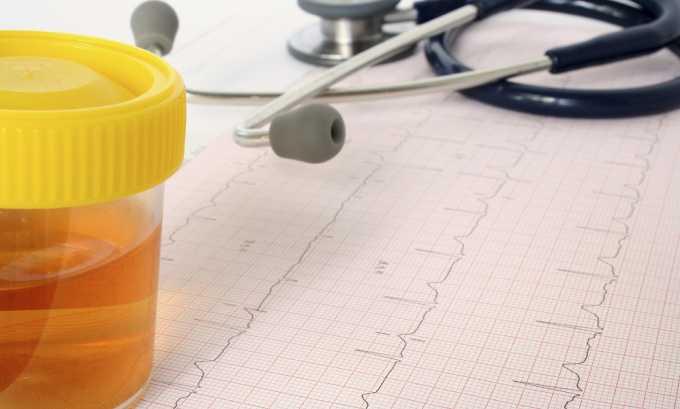 Клиническая картина цистита у диабетиков не отличается от таковой у людей, не имеющих этого заболевания, она включает появление кровянистых примесей в урине