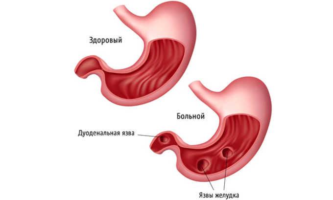 При гипотонии клюквенные плоды противопоказаны