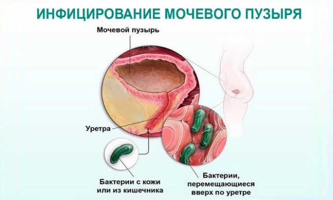 Возбудитель инфекции может проникнуть в мочевой пузырь через почки, прямую кишку, из влагалища или вместе с кровью из любого инфекционного очага в организме