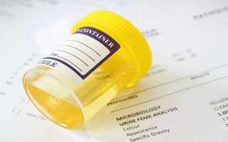 На что указывает белок в моче при цистите?