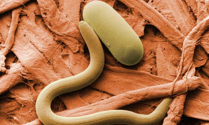 Воспалительный процесс в мочевом пузыре у ребенка может возникнуть при паразитарной инвазии