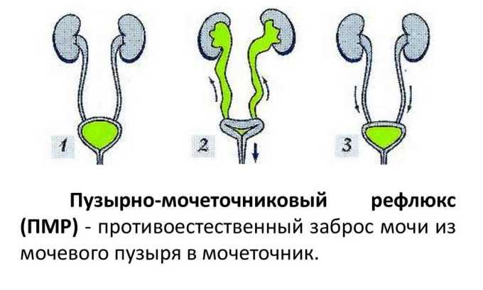 Пузырно-мочеточниковый рефлюкс не рассматривается как потенциально опасная, однако вместе с запущенным циститом вызывает изменение клапана, предотвращающего попадание мочи в мочеточник