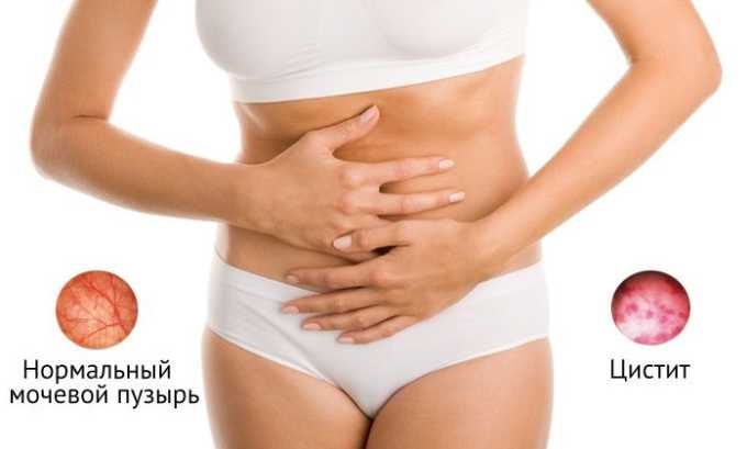 Боль в нижней области живота - характерный симптом цистита