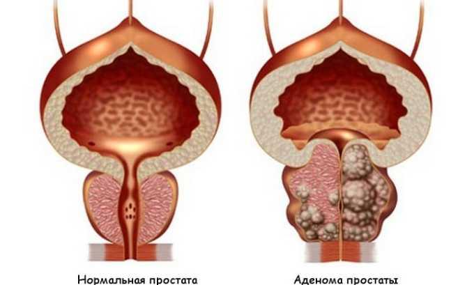 Нередко причиной воспаления мочевого пузыря становится аденома предстательной железы