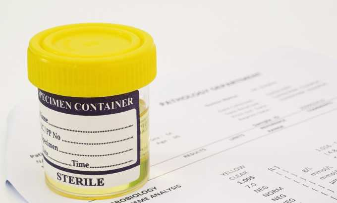 Анализ мочи общий для диагностики цистита и пиелонефрита