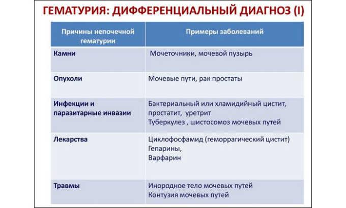 Причины гематурии