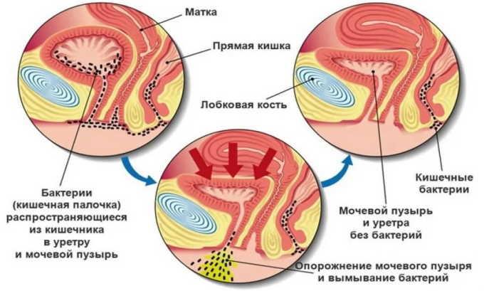 Одной из причин развития хронического цистита являются анатомические особенности: небольшая длина канала мочеиспускания, близкое расположение уретры к влагалищу и анусу
