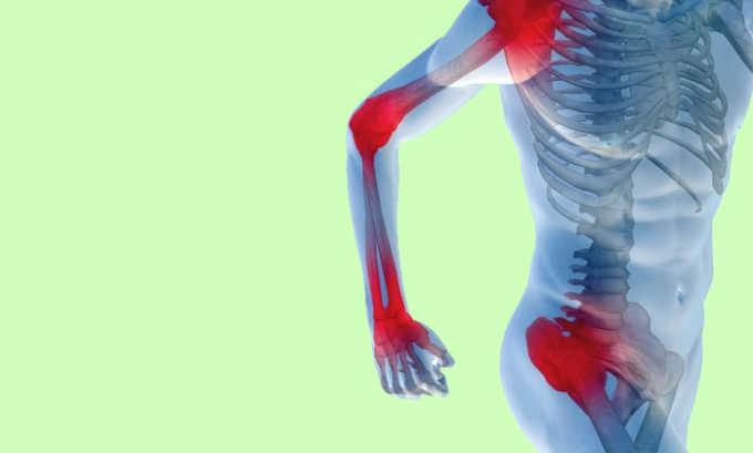 Если присутствует боль в суставах, ванны противопоказаны