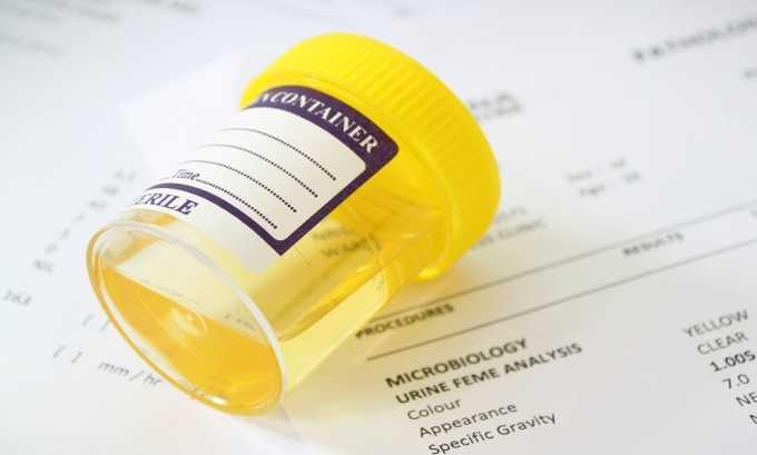 Общий анализ мочи отражает увеличение количества лейкоцитов, эритроцитов, белка и солей