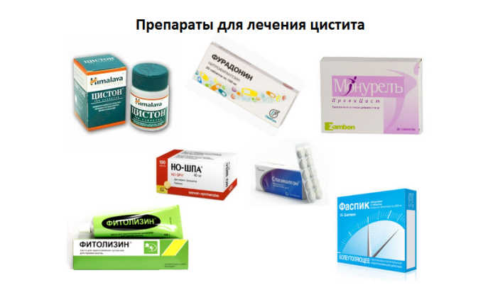 Чаще всего при цистите прописываются антибиотики
