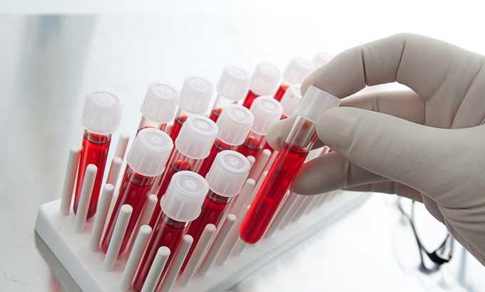 Чтобы удостоверится в диагнозе фолликулярный цистит, ребенку нужно сдать анализ крови