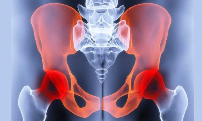 Травмы тазовых костей способны спровоцировать недержание мочи