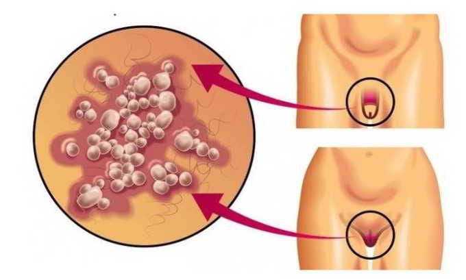Если женщина страдает генитальным герпесом, то инфекция легко попадает в мочевой пузырь, вызывая воспаление