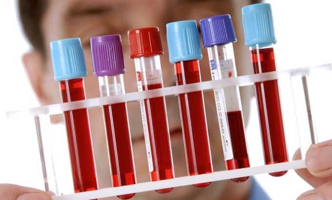 Общий анализ крови используется для определения степени воспалительного процесса в организме